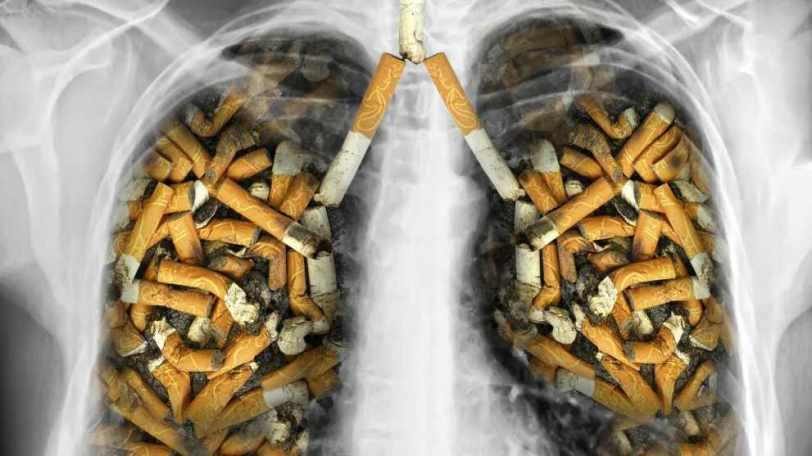 xray-of-lungs-filled-with-tobacco-cigarettes-16x9