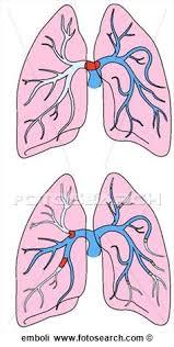 pulmonaryembolus