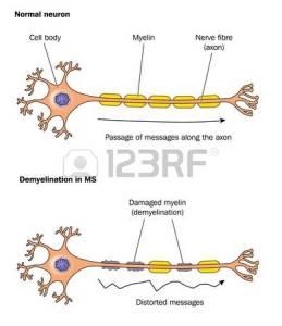 Multiplesclerosis