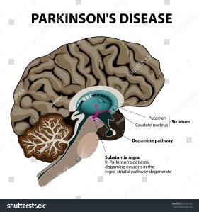 Parkinsons1