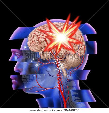 braininjury2